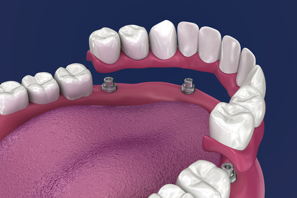 3D rendering of overdentures in a mouth